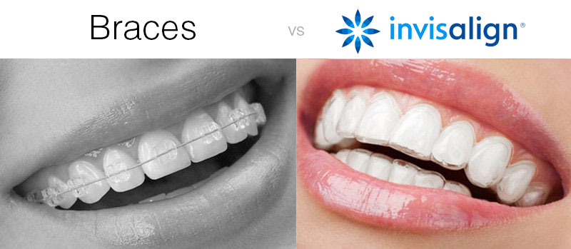 invisalign-vs-braces-2
