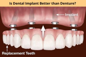 Dental Implant Yonkers
